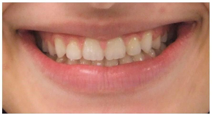 Camouflage orthodontic treatment of Adult Class III malocclusion
