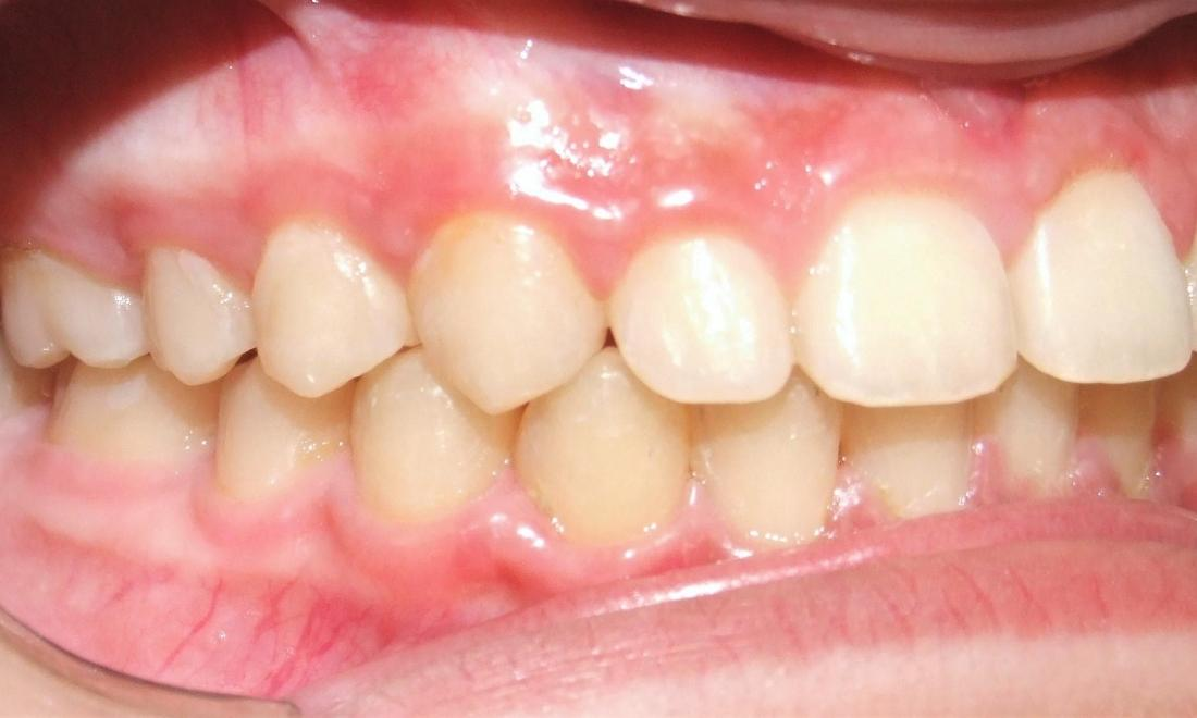 Improved inclination of anterior front teeth after braces