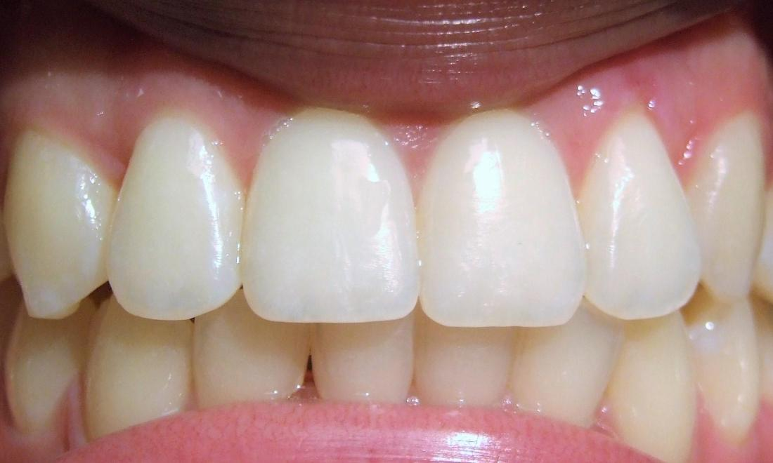 Improved smile and dental aesthetic after adult traditional braces