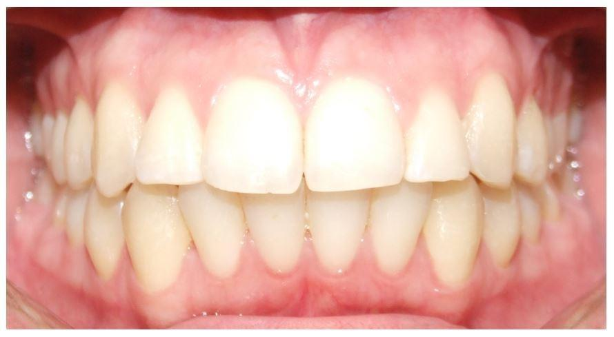 Martinez Orthodontics's Smile Gallery | Traditional Clear