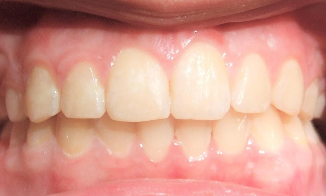 Aligned upper canines after braces