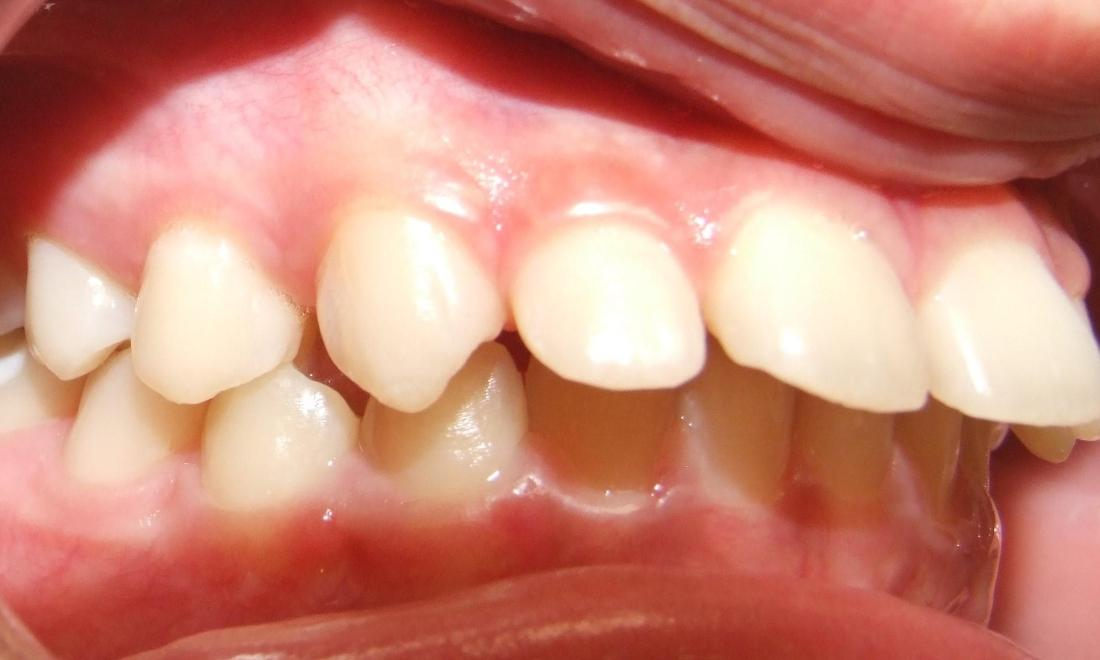 Protruding upper front teeth before braces