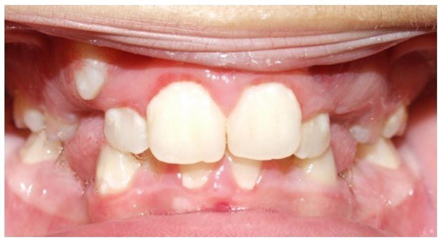 Martinez Orthodontics's Smile Gallery   Traditional Metal