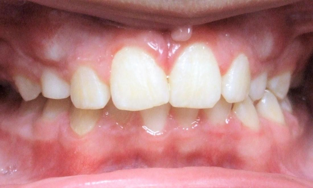 Transitional Dentition: Over-retained primary canines
