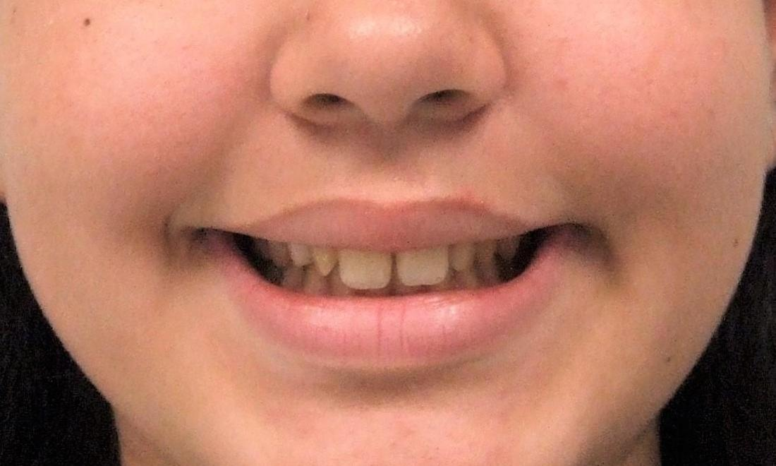 Narrow Smile due to Narrow upper jaw