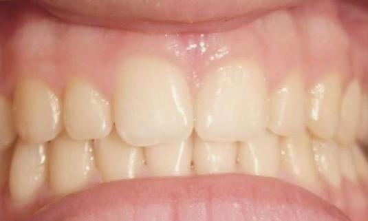 Palatal-Expander-and-Braces-Treatment-on-Pre-Teens-After-Image