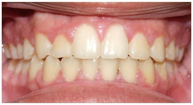 Traditional-Metal-Braces-and-Palatal-Expander-After-Image