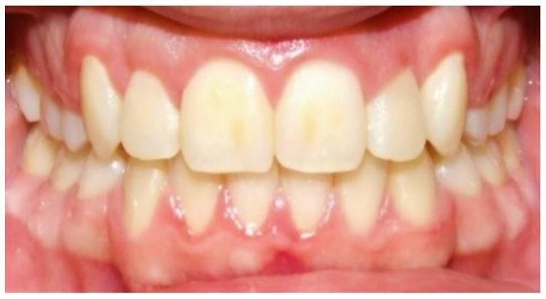 Traditional-Metal-Braces-with-Extraction-of-First-Premolars-After-Image