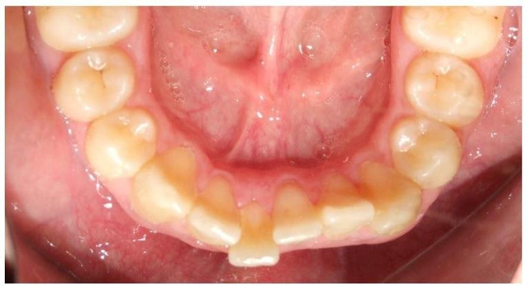 Clear-Aligners-Fixed-retainer-Before-Image