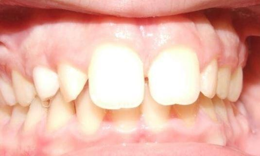 Palatal-Expander-and-Braces-Treatment-on-Pre-Teens-Before-Image