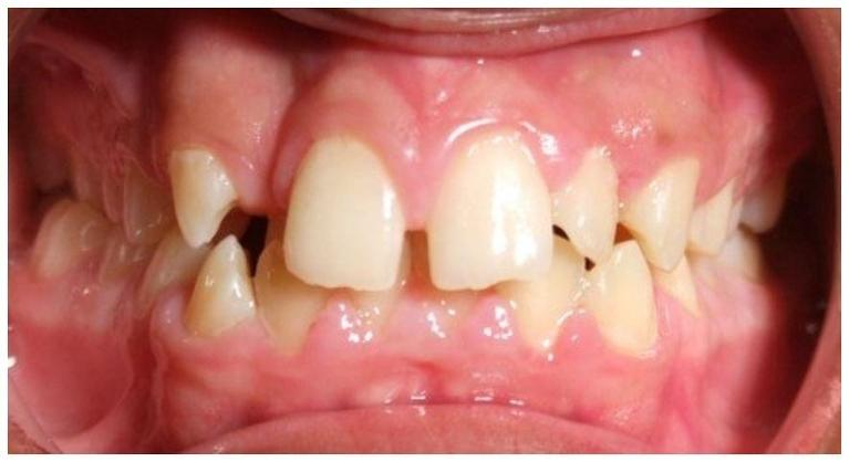 Traditional-Metal-Braces-and-Palatal-Expander-Before-Image