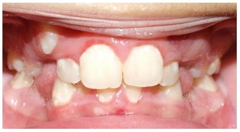 Traditional-Metal-Braces-with-Extraction-of-First-Premolars-Before-Image